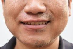 Irgendein Schnurrbart nach Zurücknahmeschnurrbart auf junger asiatischer Manngesichtsoberflächenhaut mach's gut nicht für eine la Lizenzfreies Stockfoto