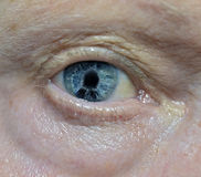 Iridocorneal Endothelial Syndrom Stock Images