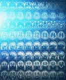 IRM ou image de résonance magnétique de tête et de balayage de cerveau Photo stock