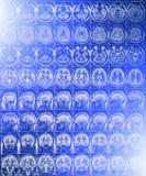 IRM ou image de résonance magnétique de tête et de balayage de cerveau avec l'effet de la lumière bleu Photographie stock
