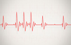 Irregular Heartbeat Illustration Royalty Free Stock Photos