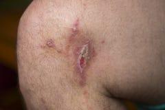 Irritant contact dermatitis at man leg, close up. Royalty Free Stock Photos