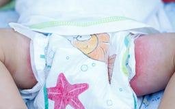 Irritant diaper dermatitis royalty free stock photo