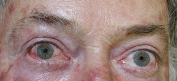 Irritated Eyes. The right eye of this man is very irritated and red due to an allergic reaction to Johnson Grass stock images