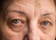 Irritated human eyes. Healthcare and medical Stock Image