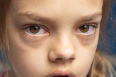 Irriterade ögon av en flicka som fick sjuk med bindhinneinflammation royaltyfri bild
