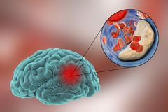 Brain stroke concept. Ischemic brain stroke concept, 3D illustration showing human brain and close-up view of blood vessel obturated with cholesterol plaque stock illustration