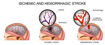 Ischemic and hemorrhagic stroke Royalty Free Stock Photo