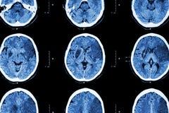 Ischemic slaglängd: (CT av cerebral infarkt för hjärnshow på den temporala vänstra frontalen - - parietal lob) (nervsystembakgrun royaltyfri bild