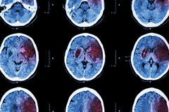 Ischemic stroke   Royalty Free Stock Images