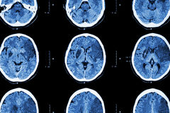 Ischemic stroke : ( CT of brain show cerebral infarction at left frontal - temporal - parietal lobe ) ( nervous system background Royalty Free Stock Image