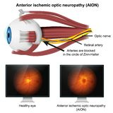 Ishemic optic neuropathy medical 3d illustration on white background royalty free illustration