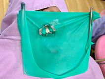 Isolamento de borracha verde da represa no dente com a braçadeira do metal para o procedimento de enchimento dental imagens de stock