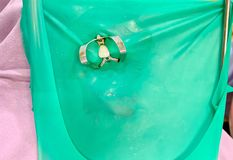 Isolamento de borracha verde da represa no dente com a braçadeira do metal para o procedimento de enchimento dental imagem de stock royalty free