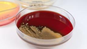 Isolamento del tampone della gola sulla capsula di Petri Immagini Stock