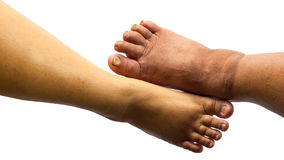 Isolate both of the toes of fat people. Isolate close-up images from the top view of both feet of the obese who may have germs stock photos