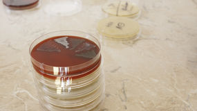 Isolated bacteria on petri dish. Isolated bacteria on columbia blood agar Stock Photos