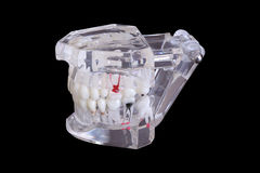 Isolated dental tooth implants in a mold of a human jaw model on black background with clipping path Stock Photography
