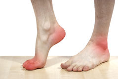Isolated disease of the feet Stock Photo