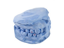Isolated pretreatment  cast model for teeth study on white backg Royalty Free Stock Images