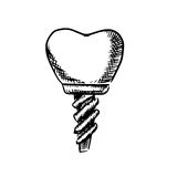 Isolated sketch of a tooth implant Stock Photos