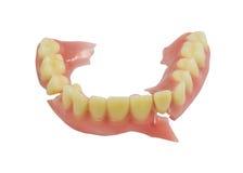 Isolato rotto della protesi dentaria su fondo bianco Immagini Stock