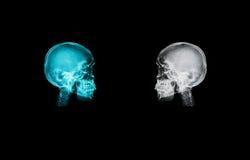 Isoleert het schedel x-ray beeld op zwarte backgroud met het knippen van weg royalty-vrije stock foto's