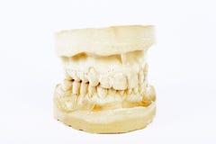 isolerad modell för tandprotes gypsum arkivfoto