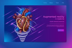 Isometrische Banner Vergrote Werkelijkheid in Geneeskunde stock illustratie
