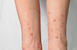 Itching causato dalle allergie, donne della pelle Fotografia Stock Libera da Diritti