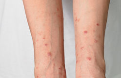 Itching caused by allergies, skin women. Royalty Free Stock Photo