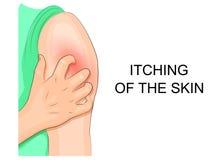 Itching della pelle, infezione mano che pettina spalla illustrazione vettoriale