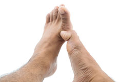 Itchy foot Royalty Free Stock Photo