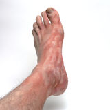 Itchy foot Royalty Free Stock Images