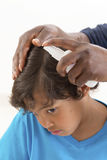 Itchy Scalp from Head Lice back view Stock Image
