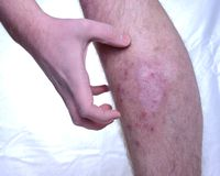 Itchy skin disease Stock Photo