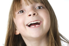 Ittle girl with missing lower tooth. Photo of a ittle girl with missing lower tooth royalty free stock photo