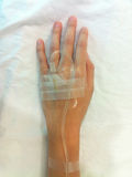 Iv tube on patient's hand Royalty Free Stock Photography