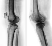 Jämförelse mellan det normala mänskliga knäet & x28; vänstersidabild & x29; och osteoarthritisknä & x28; höger bild & x29; på con Royaltyfri Fotografi
