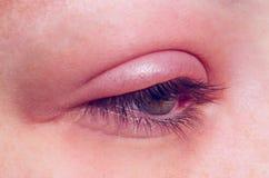 Jęczmienna infekcja na oku fotografia stock