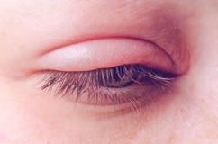 Jęczmienna infekcja na oku obraz stock