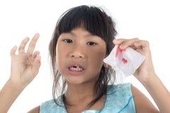 6 Jahre altes Kind hat den Milchzahn verloren Stockbild