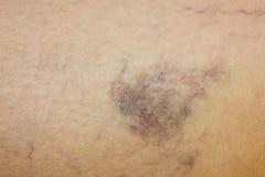 Jambe avec des veines variqueuses Image libre de droits