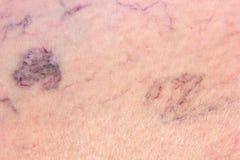 Jambe complètement des veines variqueuses Photos stock