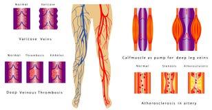 Jambes de système vasculaire Images libres de droits