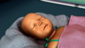 Jaundice in new born Royalty Free Stock Images