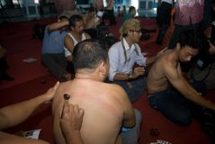 JAVANESE ACUPUNCTURE THERAPY KEROKAN Royalty Free Stock Images