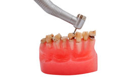 Jaw and dental handpiece. Jaw affected tooth decay and dental handpiece Royalty Free Stock Images