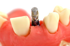Jaw and  implant Stock Photo