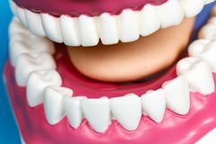 Jaw Model with human teeth Royalty Free Stock Photography